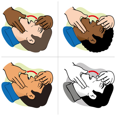 guides: Illustration First Aid person opening the mouth clearing airway ethnicities. Ideal for catalogs and informative medical guides