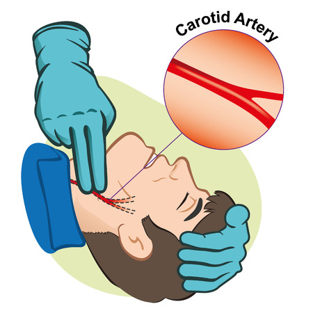 carotid: First Aid illustration person measuring pulse through the carotid artery with gloves. Illustration