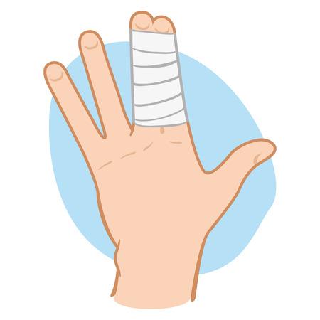 dedo: Ilustração de uma mão humana com os dedos agrupados com ataduras. Ideal para catálogos, informações e guias de primeiros socorros