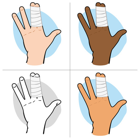 bundling: Illustration of a human hand with fingers bunched with bandages, ethnic. Ideal for catalogs, information and first aid guides