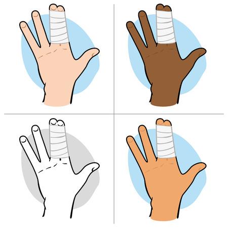 caricatura enfermera: Ilustración de una mano humana con los dedos agrupado con vendas, étnico. Ideal para catálogos, información y guías de primeros auxilios