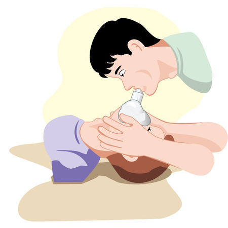 First Aid CPR resuscitation Illustration of a person with respiratory arrest being resurrected with the aid of a pocket mask to help with breathing