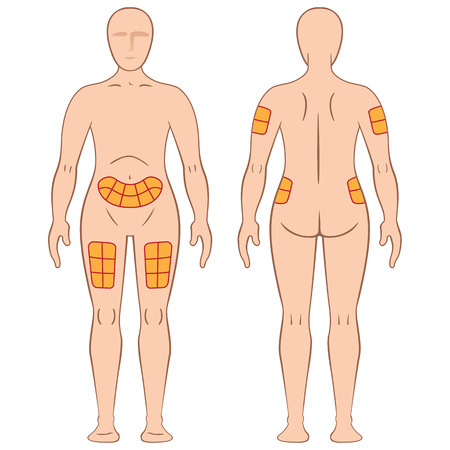 inyeccion intramuscular: Guía de aplicación de la inyección máquina de colada en una persona, espalda, muslo, hombros, vientre, y puede ser para el tratamiento de la diabetes o esclerosis Vectores