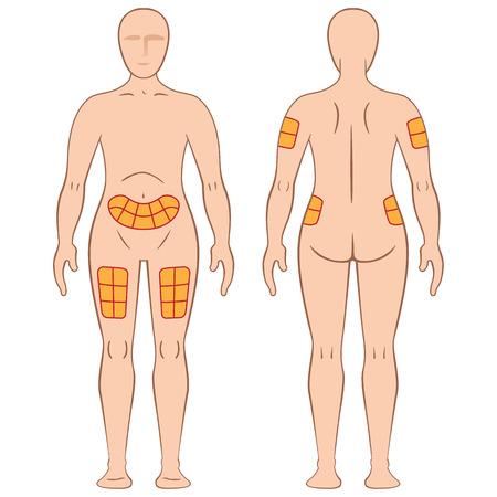 Leitfaden zur Anwendung des Zaubernden Injektion in eine Person, Rücken, Oberschenkel, Schulter, Bauch und kann für die Behandlung von Diabetes oder Sklerose