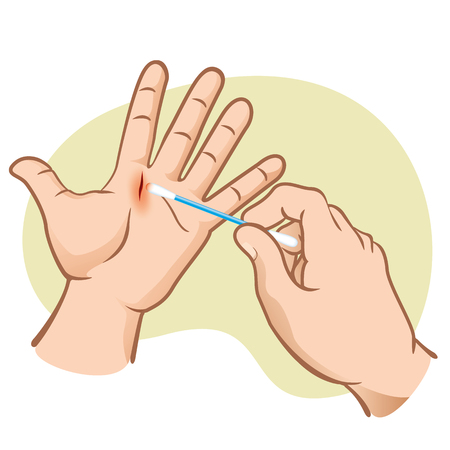 First aid wound with hand cutting, cleaning with cotton swab. Caucasian. Ideal for catalogs, informative and institutional guides