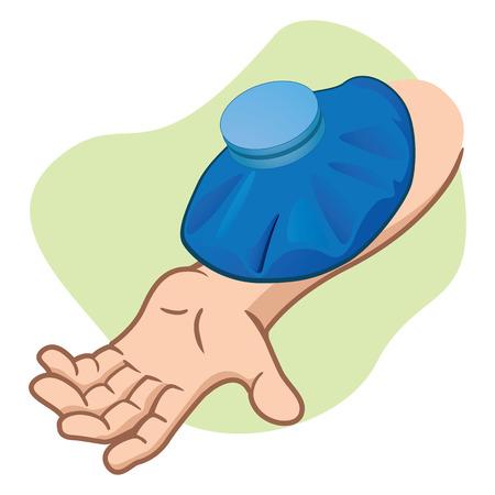 luxacion: el brazo de la ilustraci�n de primeros auxilios persona con bolsa t�rmica. Ideal para cat�logos, gu�as informativas y m�dicos