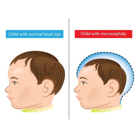 ジカによる小頭症病発生と生まれたばかりの赤ちゃんのイラスト。理想的な情報・制度関連衛生と医療