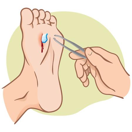 Persoon gewond voet met gebroken glas, trekken met een pincet, Kaukasisch. Ideaal voor catalogi, informatieve en institutionele gidsen Stock Illustratie