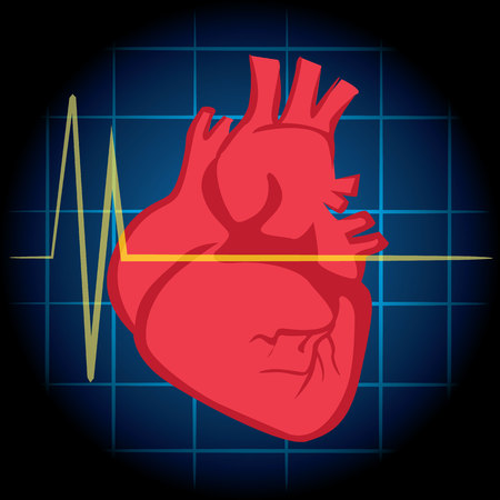 heart attack: Illustration is first aid, icon heart, heart attack, CPR. Ideal for relief tutorials and medical manuals