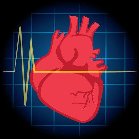 convulsion: La ilustración es de primeros auxilios, icono del corazón, infarto de miocardio, la RCP. Ideal para tutoriales de ayuda y manuales de medicina