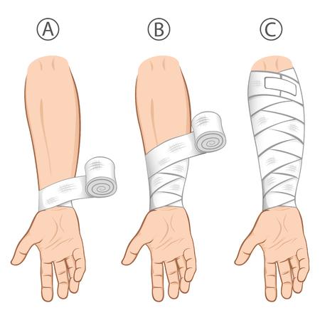 Illustratie eerste hulp onderarm caucasiaon, eenvoudige educatieve dressing. Ideaal voor medische catalogi, informatieve en institutionele materialen