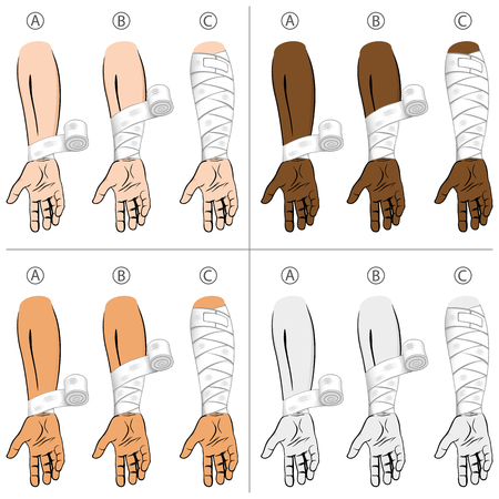 medical dressing: Illustration first aid forearm ethnic, educational simple dressing. Ideal for medical catalogs, informational and institutional materials Illustration