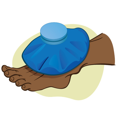 descendant: Illustration First Aid person african descendant, the foot with thermal bag. Ideal for catalogs, information and medical guides