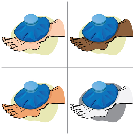 Illustration First Aid ethnic person, the foot with thermal bag. Ideal for catalogs, information and medical guides