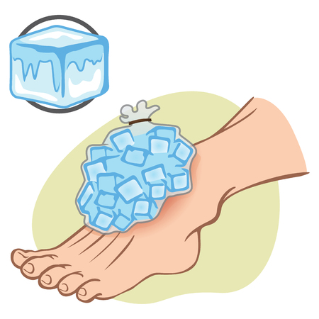 toes: Illustration First Aid Caucasian person standing with ice pack. Ideal for catalogs, information and medical guides