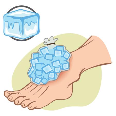 luxacion: Ilustración de primeros auxilios Europeo persona de pie con bolsa de hielo. Ideal para catálogos, información y guías médicas