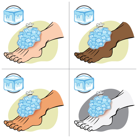pack ice: Illustration First Aid person ethnic, standing with ice pack. Ideal for catalogs, information and medical guides
