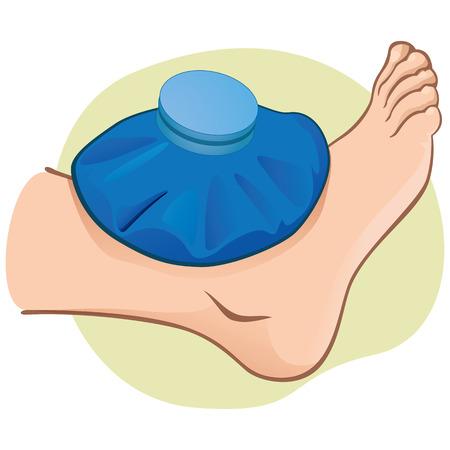 Ilustración de primeros auxilios persona caucásica, vista lateral de pie, con la bolsa térmica. Ideal para catálogos, información y guías médicas