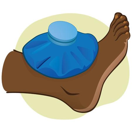 dislocation: Ilustración de primeros auxilios persona afro-descendiente, vista lateral de pie, con la bolsa térmica. Ideal para catálogos, información y guías médicas