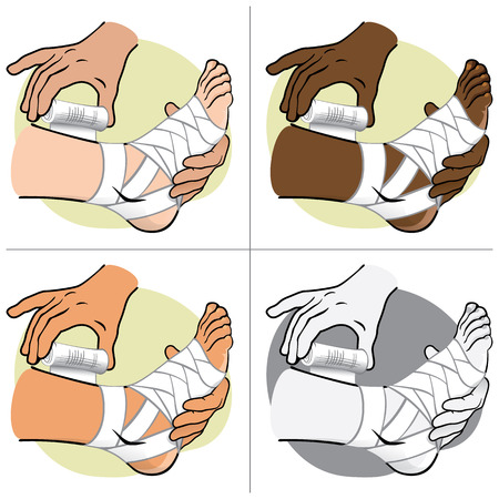 curative: Illustration First Aid person ethnic, standing side view, bandaging the foot. Ideal for catalogs, information and medical guides
