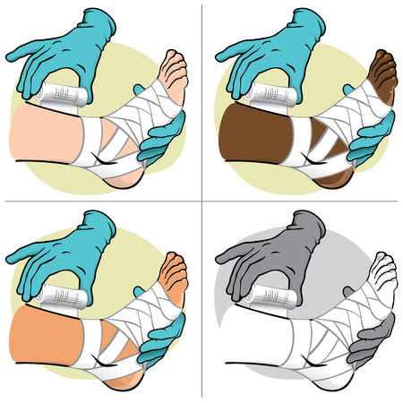 Illustration First Aid person ethnic, standing side view, bandaging the feet, with hands gloves. Ideal for catalogs, information and medical guides