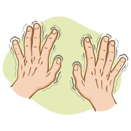 trembling: Close part of the body, pair of hands shaking Symptoms of, Parkinsons disease, cold or fear, Caucasian. Ideal for educational and institutional and medical materials Illustration