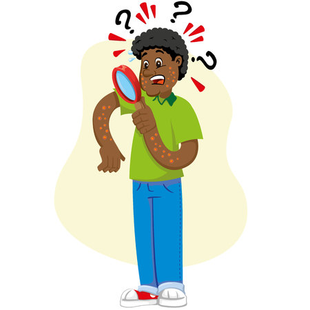 Mascot ben person, Afro-descendant man, with allergy, rashes and dermatitis, symptom. Ideal for informational and institutional related to medicine