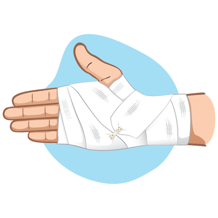 Hände der Illustrations-ersten Hilfe mit Verband in der Palmen- und Handgelenkregion, Kaukasier. Ideal für medizinische, informative und institutionelle Kataloge Standard-Bild - 89962500