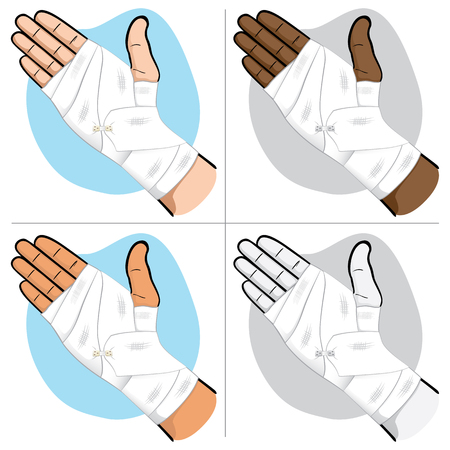 Illustration first aid hands with bandage bandage in the palm and wrist region, ethnicities. Ideal for medical, informative and institutional catalogs