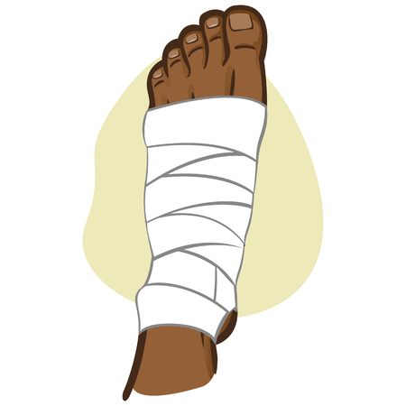 Illustration of firs aid person afro descent, bandaged foot, top view. Ideal for catalogs, information and medicine guides Çizim