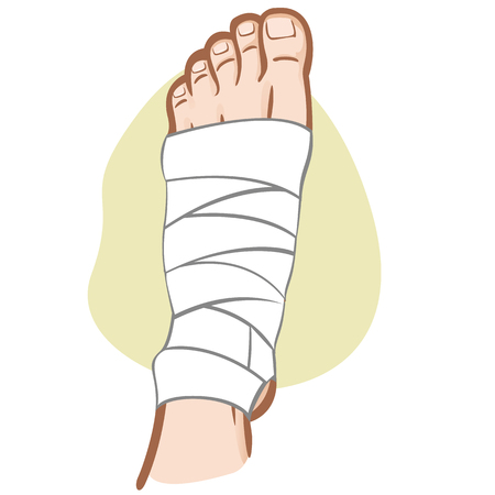 Illustration of firs aid person caucasian, bandaged foot, top view. Ideal for catalogs, information and medicine guides Illustration