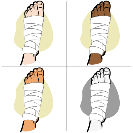 Illustration of firs aid person ethnicity, bandaged foot, top view. Ideal for catalogs, information and medicine guides Ilustração
