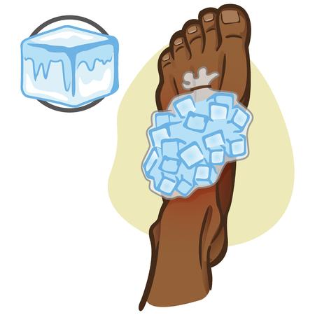 Ejemplo de la bajación africana de la persona de la ayuda de los abetos, pie con el bolso de hielo, visión superior. Ideal para catálogos, información y guías de medicina