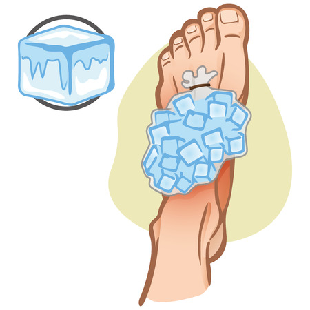 Illustration of firs aid person caucasian, foot with ice bag, top view. Ideal for catalogs, information and medicine guides Illustration