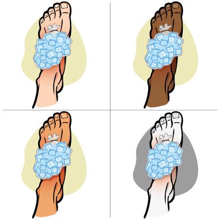 Illustration of firs aid person ethnicity, foot with ice bag, top view. Ideal for catalogs, information and medicine guides