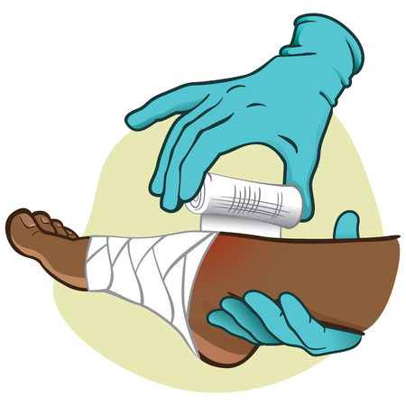 Illustration of First Aid person, afro descent, foot side view, hands with gloves bandaging the foot. Ideal for catalogs, information and medicine guides