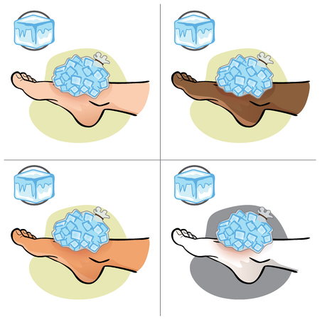 Illustration of first aid person ethnicity, foot with ice bag, side view. Ideal for catalogs, information and medicine guides