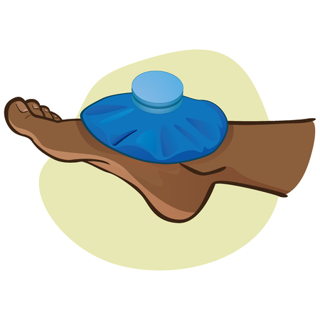Illustration of first aid person afro descendant, foot with thermal bag, side view. Ideal for catalogs, information and medicine guides
