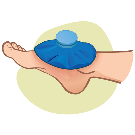 Ilustración de primeros auxilios persona caucásica, pie con bolsa térmica, vista lateral. Ideal para catálogos, información y guías de medicina Logos
