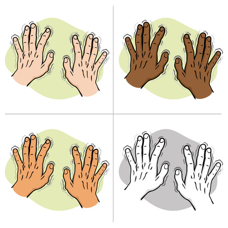 Close body part, pair of hands shaking Symptoms of, Parkinsons disease, cold or fear, ethnic. Ideal for educational and institutional and medical materials