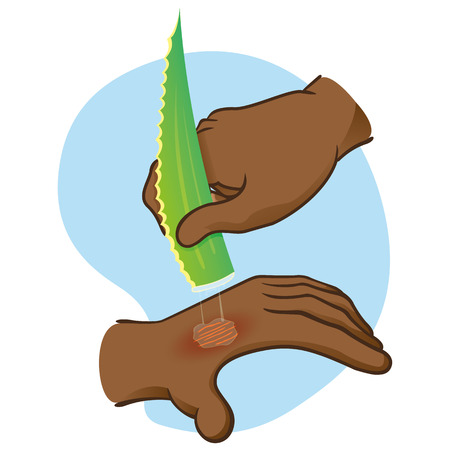 Illustration first aid hands with burn and injury, passing aloe vera, afro descent. Ideal for medical, informative and institutional catalogs Illustration