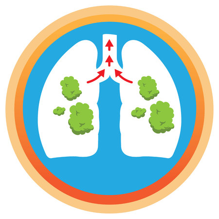 Illustration depicts a lung with phlegm, mucus being spelled. Ideal for health and institutional information Vector Illustratie