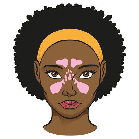 Illustration nasal cavity face, sinuses, black woman. Ideal for catalogs, newsletters and medicine and institutional