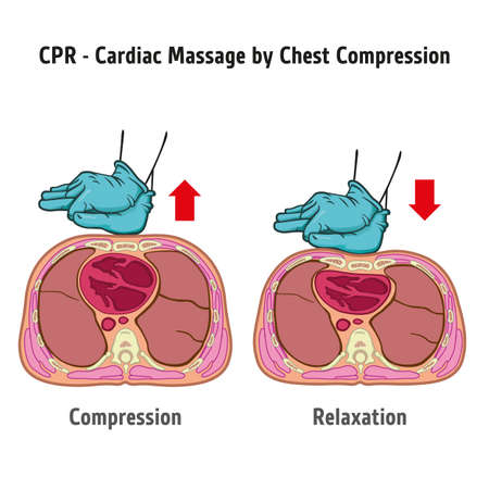 First Aid Resuscitation (CPR), chest compression chest massage for resuscitation. Ideal for training material, catalogs and institutional Ilustração