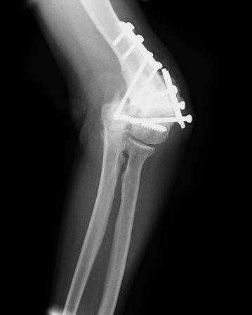 x-ray of an injured elbow photo