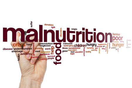 malnutrition: Malnutrition word cloud concept