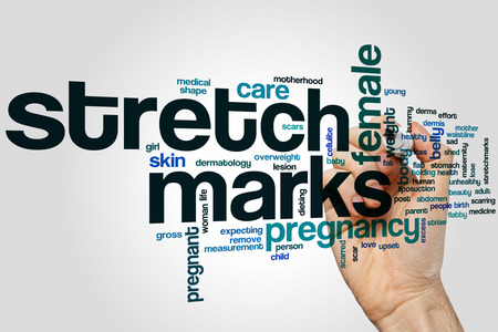 Stretch marks word cloud concept