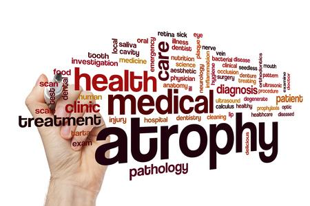 dental calculus: Atrophy word cloud concept