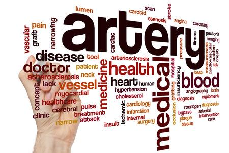 carotid: Artery word cloud concept