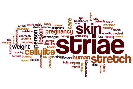 Striae word cloud concept